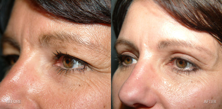 pinch blepharoplasty 10 Best Peninsula Spas To Get Botox